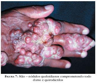 lacaziose grave - caso clínico - raciocínio clínico