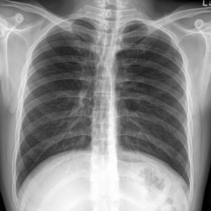 tin man syndrome - erros em radiologia