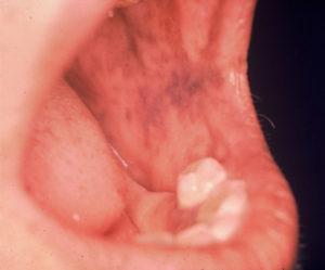 Hiperpigmentação - Raciocínio clínico