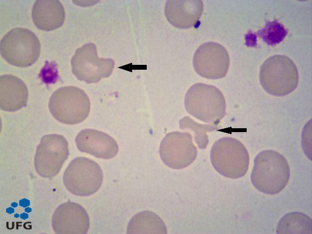 esquizócitos - wicked problems - raciocínio clínico