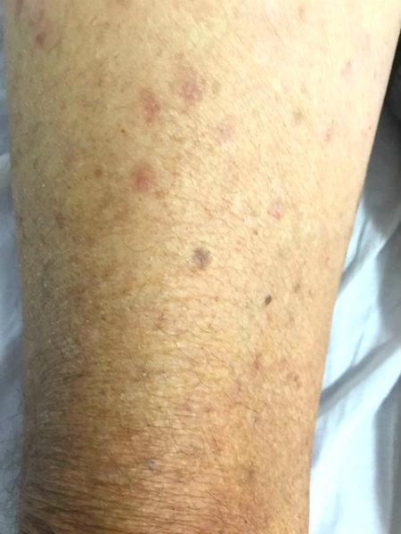 Lesão de pele - Caso clínico Interativo #03 - Raciocínio Clínico