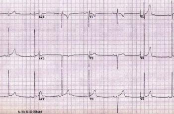 Eletrocardiograma - Caso clínico 9 - Médico parente - Raciocínio clínico