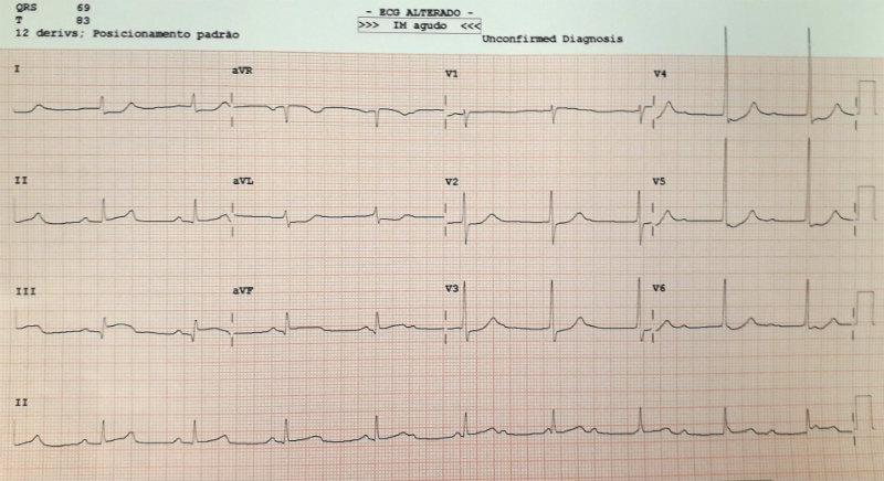 Eletrocardiograma - Caso clínico 10 - Uma peça que não encaixa - Raciocínio Clínico - Diabetes