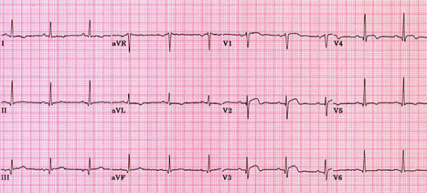 Cartilha para pacientes - o que mais pode ser - Raciocínio Clínico - eletrocardiograma - infarto agudo