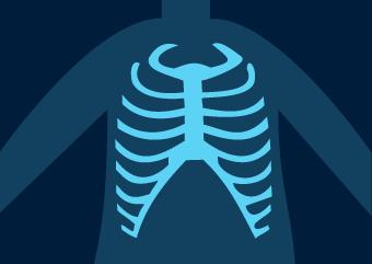256 tons de cinza: Erros em Radiologia