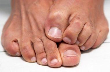 Erro diagnóstico: Dr. Nassib e o mal de Hansen